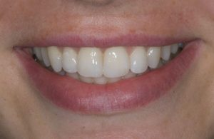 After Treatment Inman Aligner Case Studies Mulgrave Vic