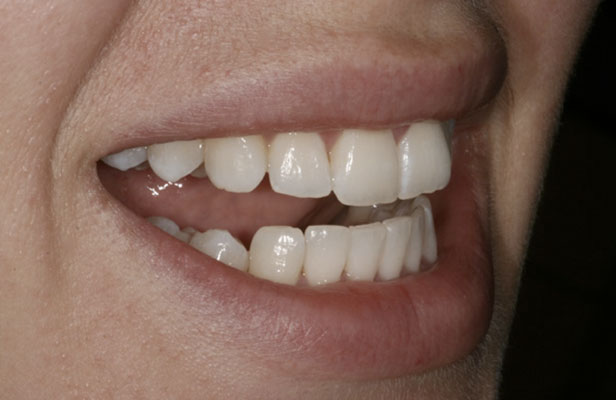 After Treatment Inman Aligner Case Study Purity Dental Mulgrave Vic