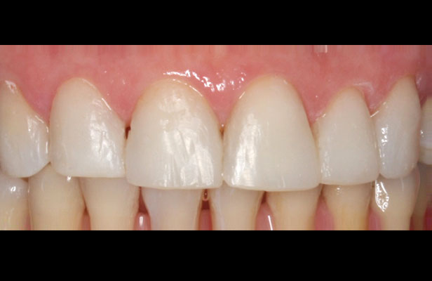 Composite Resin Veneers