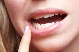 Are Your Gums Healthy Purity Dental Mulgrave Vic