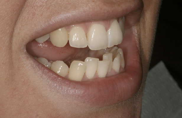 Before Treatment Inman Aligner Case Study Purity Dental Mulgrave Vic