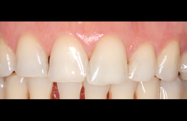 Before Veneers Treatment Case Study Purity Dental Mulgrave