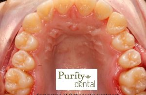Completion of Orthodontic Treatment Completion of Orthodontic Treatment Purity Dental Mulgrave Vic