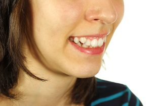 Crooked and Misaligned teeth Treatment AT Purity Dental Mulgrave Vic