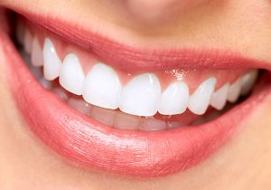 Cosmetic Dentistry Purity Dental Mulgrave Vic