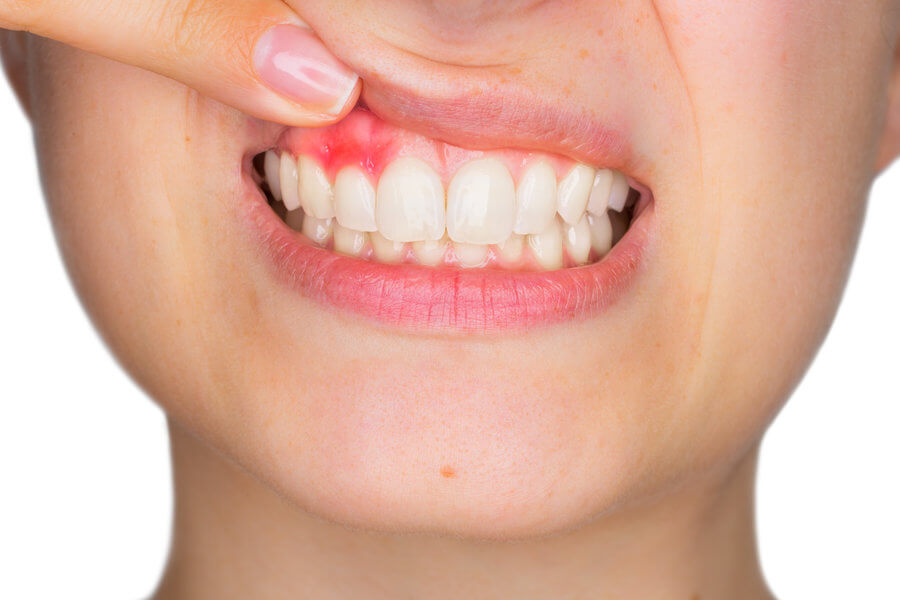gum disease in female